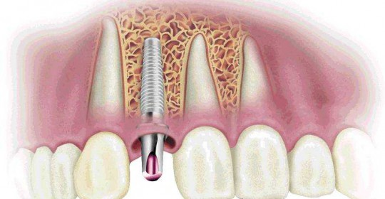 dental implant schematic 2